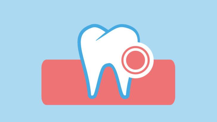 parodontopatia studio dentistico gennaro