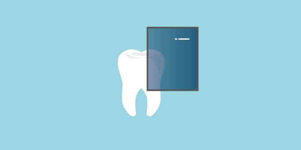 anchilosi-dentale studio dentistico gennaro