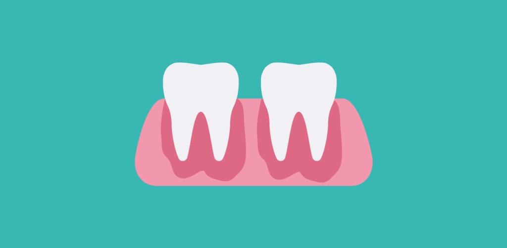 Ascesso dentale - Studio Dentistico Gennaro Palermo