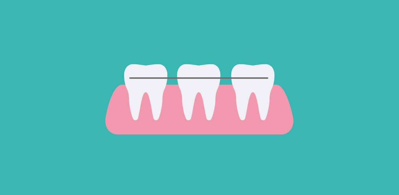 ortodonzia mobile studio dentistico gennaro palermo