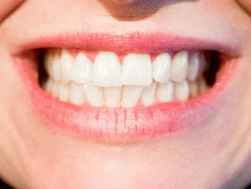 dentatura adolescenti
