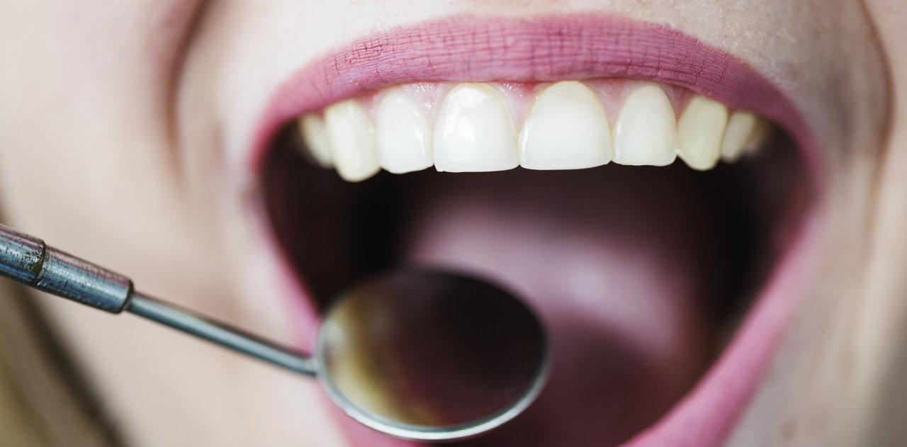 denti che cadono
